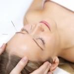 """MEDICINA: Agopuntura diminuirebbe """"caldane"""" da menopausa"""